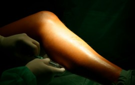 varicose and spider veins treatments
