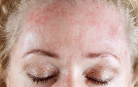 rosacea dry skin