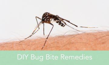 DIY bug bite remedies